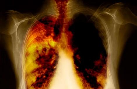 Безплатни прегледи за туберкулоза тази седмица във Варна