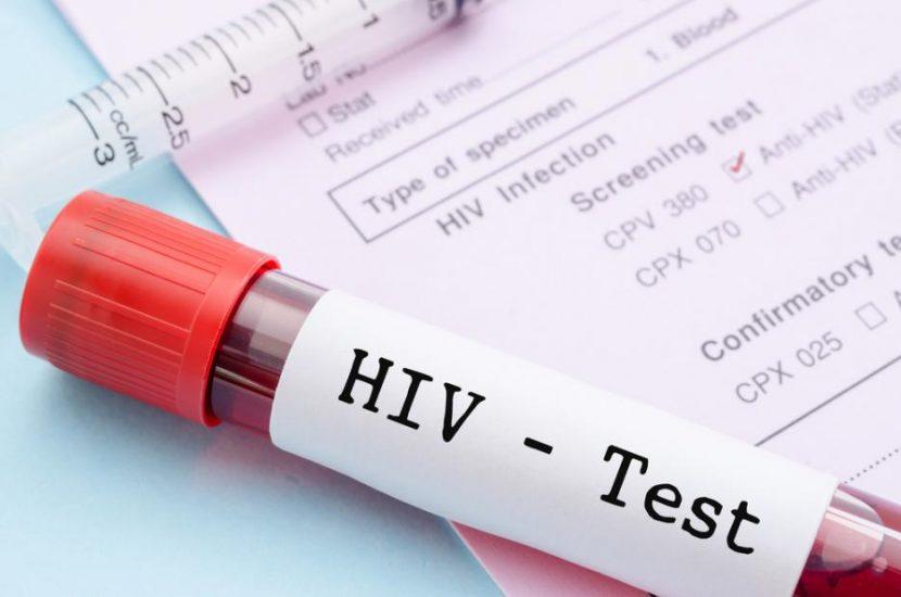 12 нови случая на ХИВ са установени във Варна през 2018-та