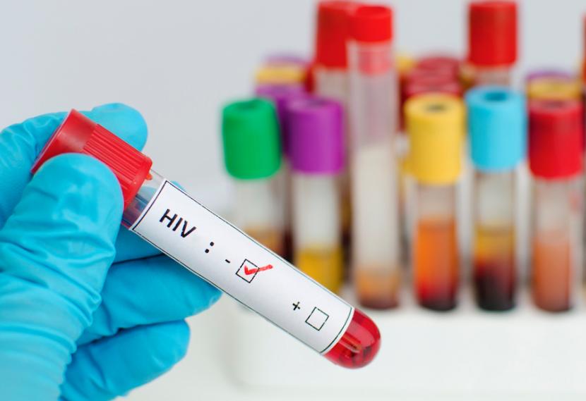Нови 9 случая на СПИН във Варна