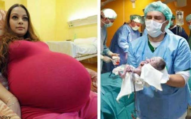 23-годишна майка родила деца, които се раждат веднъж на 480 години!