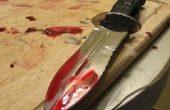 Баща опита да убие 7-годишното си дете във Варна! Намушкал го с нож!