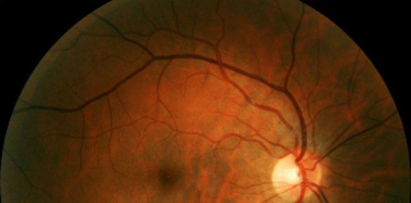 Безплатен скрининг за диабетна ретинопатия във Варна и други градове