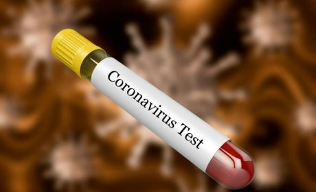 Масово тестване за COVID-19 правят във варненската община Дългопол