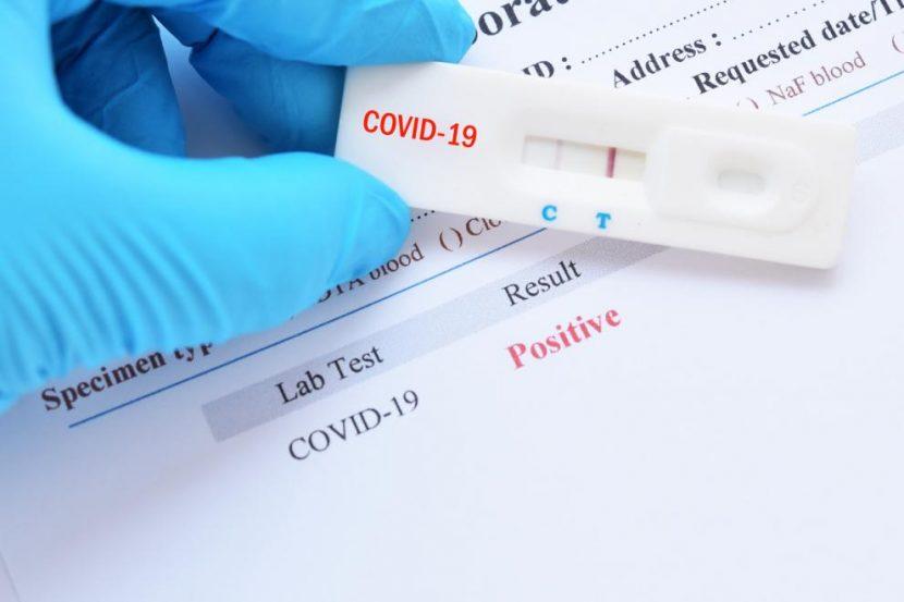Безплатен PCR тест за всеки с поне 2 симптома